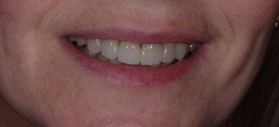Лечение кариеса и протезирование зубов (фото)
