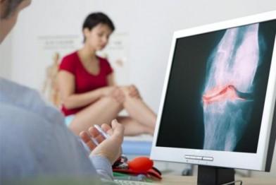 Как не прозевать остеопороз (фото)